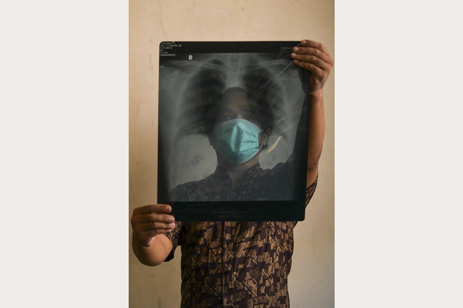 Ara Wiraswara (39), seorang ASN, menunjukkan hasil rontgen paru-paru miliknya di Bogor. Dari pengalaman Ara selama menjalani isolasi di RSUD Kota Bogor, Jawa Barat, dukungan moral sangat dibutuhkan oleh pasien.\r\n