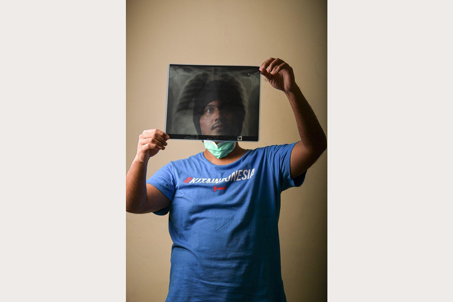 Rilsan Malkhi (26) menunjukkan hasil rontgen paru-paru miliknya di Jakarta. Karyawan swasta itu menjalani isolasi di RSPAD Gatot Soebroto dan dinyatakan negatif 14 April 2020. \r\n