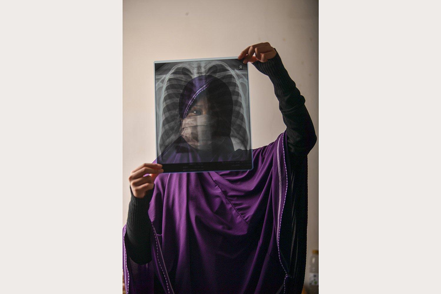 KSF (11) menunjukkan hasil rontgen paru-paru miliknya di Jakarta. KSF yang seorang pelajar itu berstatus PDP dan menjalani perawatan di RS Darurat Wisma Atlet.\r\n\r\n