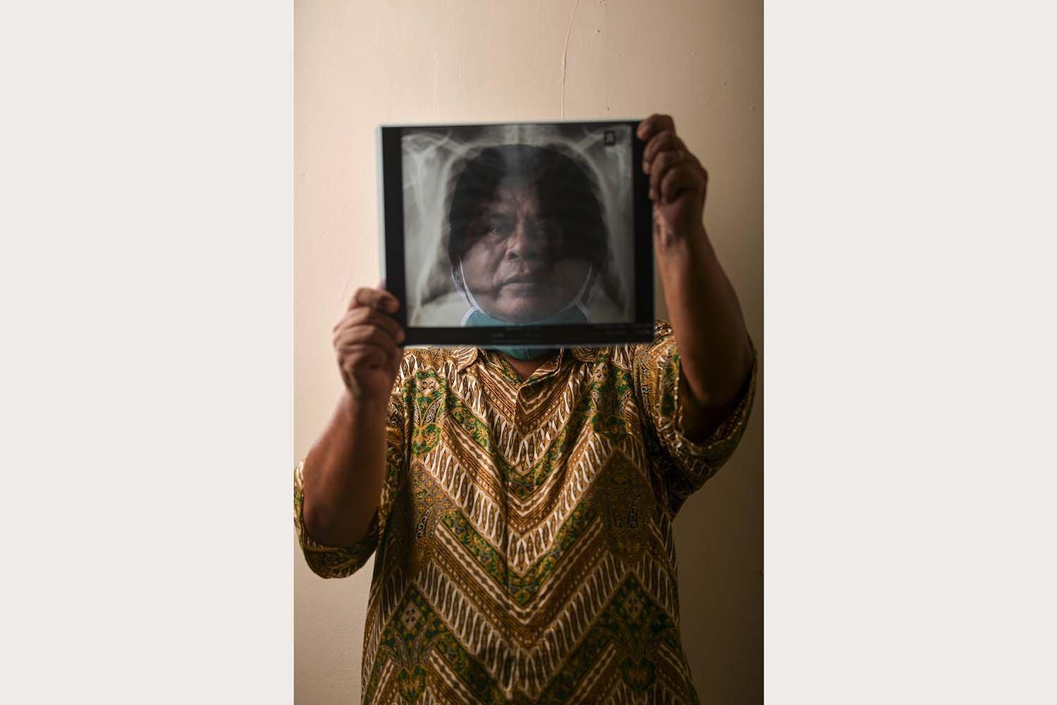 Alben Sitohang (68) menunjukkan hasil rontgen paru-paru miliknya di Jakarta. Wiraswasta itu menjalani isolasi di RS darurat Wisma Atlet selama 22 hari dan dinyatakan negatif pada 19 April 2020.\r\n