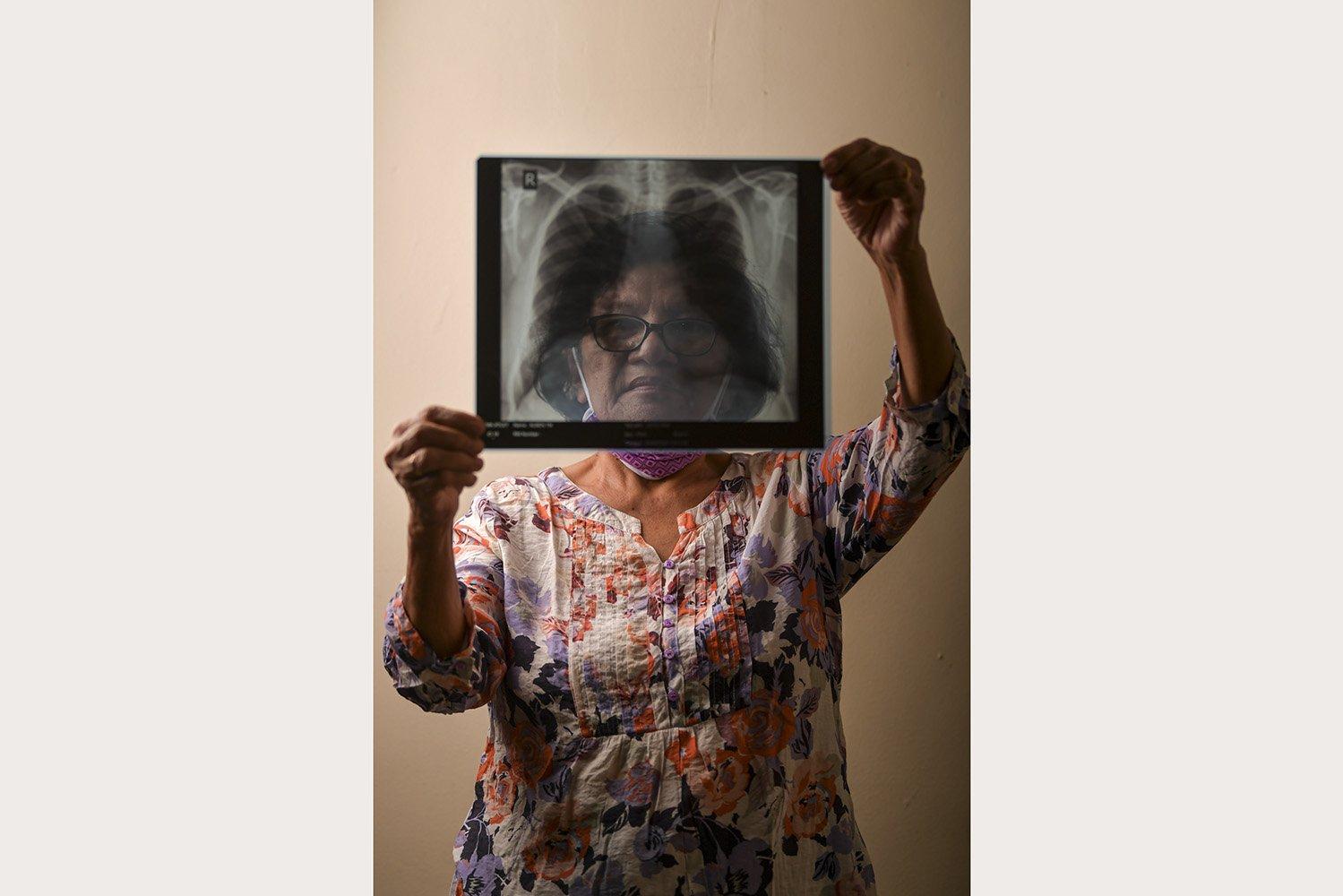 Peberia Tinambunan (69), pensiunan ASN, menunjukkan hasil rontgen paru-paru miliknya di Jakarta. Peberia menjalani isolasi mandiri setelah suaminya dinyatakan positif terinfeksi corona.\r\n