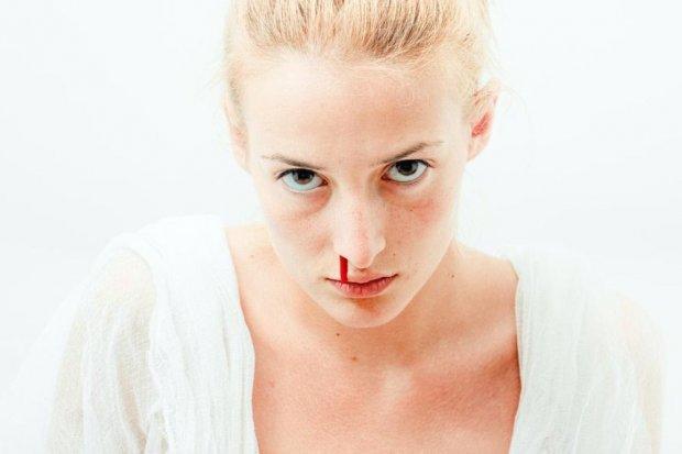 Kenali penyebab mimisan yang umum terjadi pada anak-anak hingga orang dewasa.